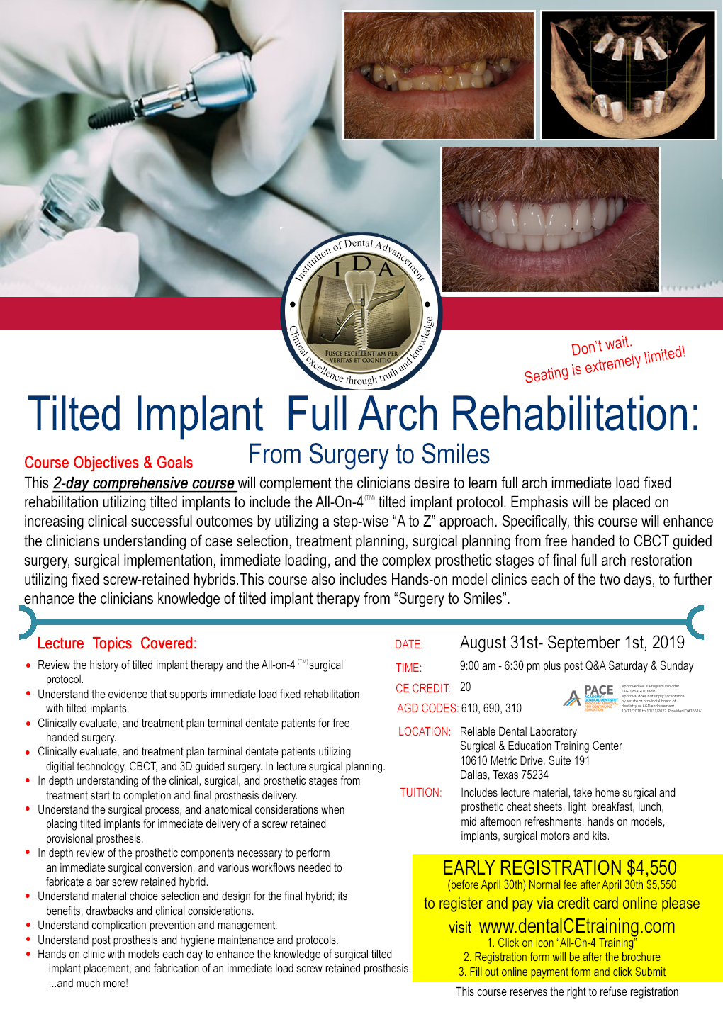 All on 4 dental implant course training